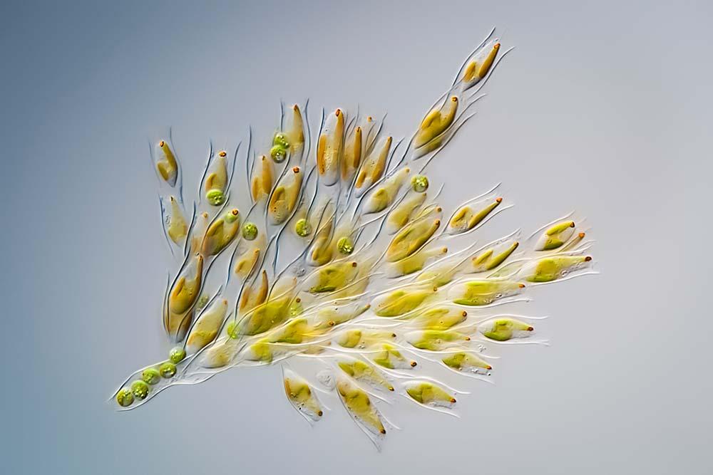 Highly Commended: Dinobryon Divergens is commonly known as golden algae. Håkan Kvarnström in Stockholm, Sweden